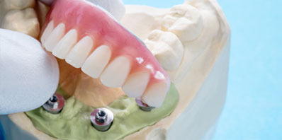 South Jersey Dental Implants